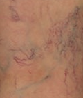 varicose vein removal orange county