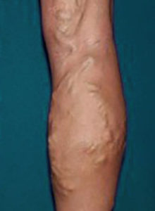 varicose vein treatment orange county