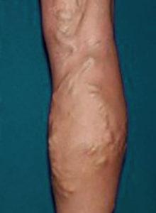 varicose vein treatment orange county