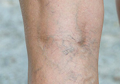 varicose vein treatment san diego