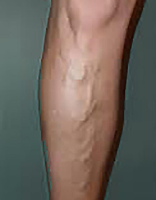 Varicose Veins Treatment Overview