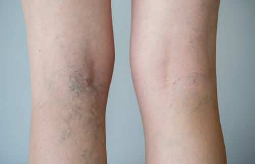 spider vein removal orange county