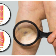 varicose veins and spider vein treatment