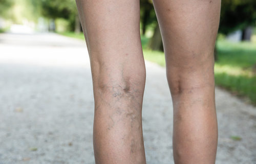 varicose veins and some treatment options