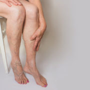 vein treatment - sclerotherapy